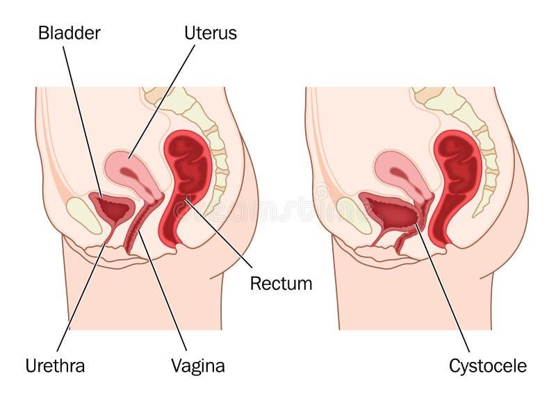 膀胱下垂 皇族释放例证