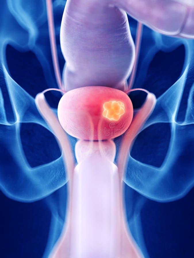 膀胱癌 皇族释放例证