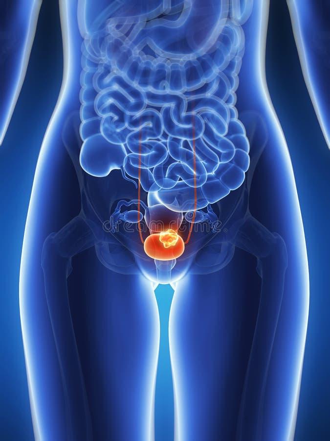 膀胱癌 库存例证