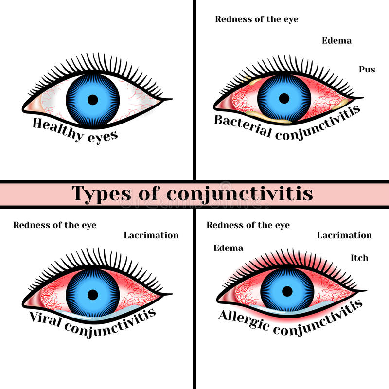 结膜炎类型 眼睛炎症疾病  向量例证