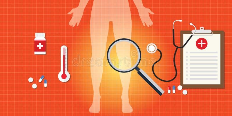 膝盖与医学的痛苦概念 向量例证