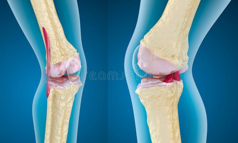 膝盖关节的骨质疏松症 皇族释放例证