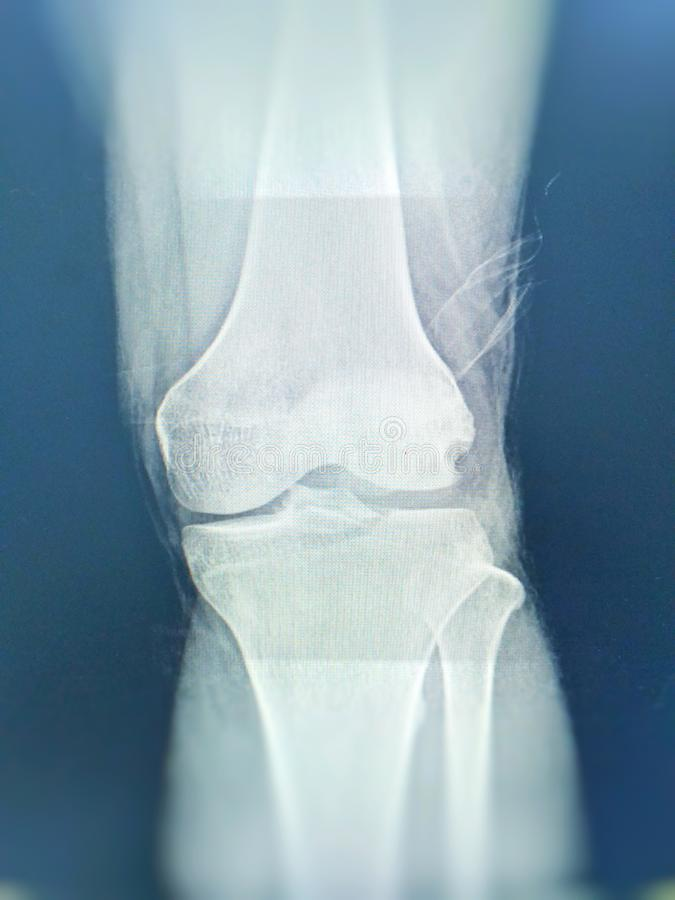 膝盖关节X-射线视图破碎胫骨卓越被怀疑 被留下的膝盖关节流体被看见 库存图片