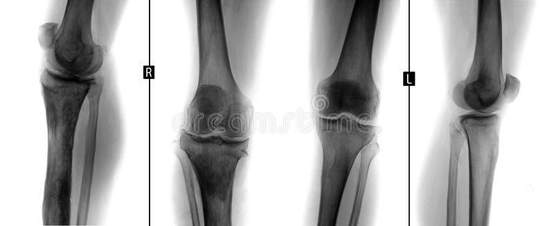 膝盖关节X-射线  胫骨的权利的骨髓炎 负 免版税图库摄影