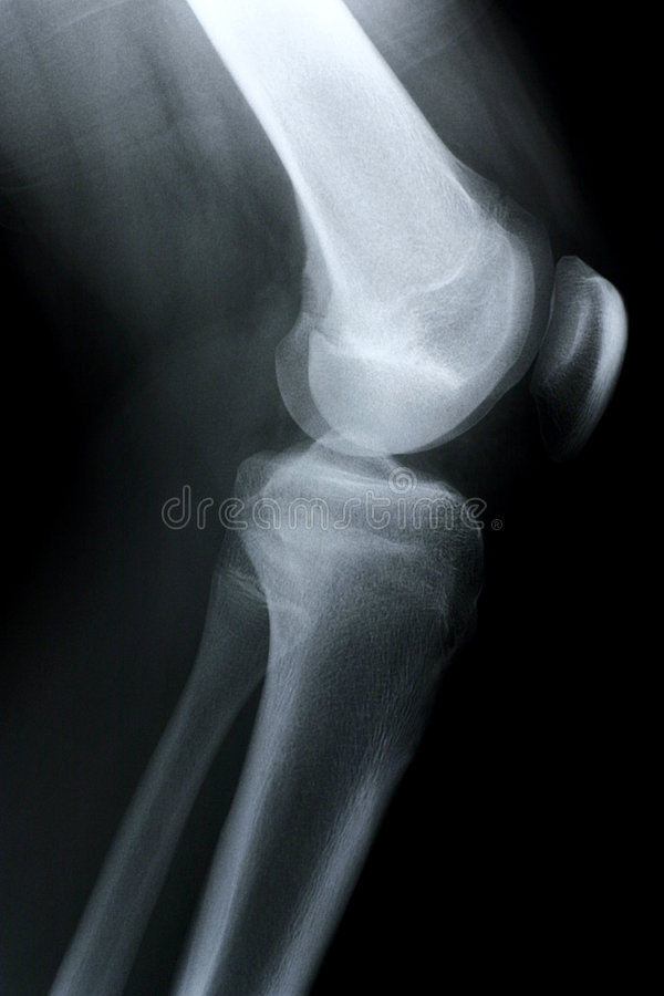 膝盖副X-射线 免版税库存照片