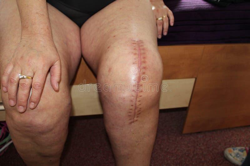总膝盖替换,膝盖手术 库存照片