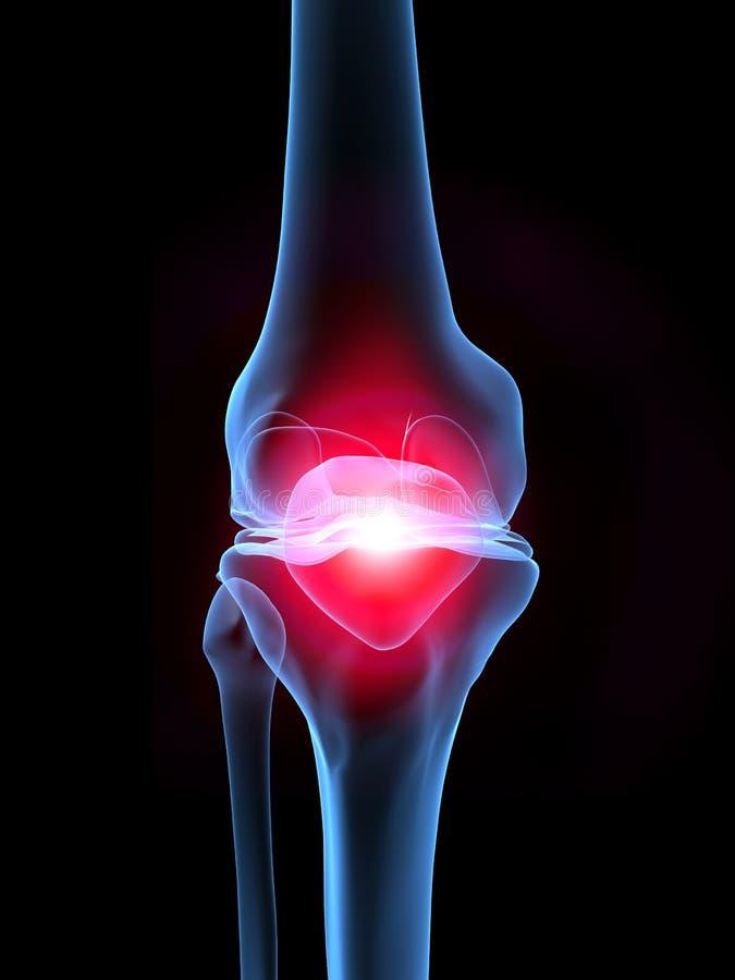 膝盖痛苦光芒x 向量例证