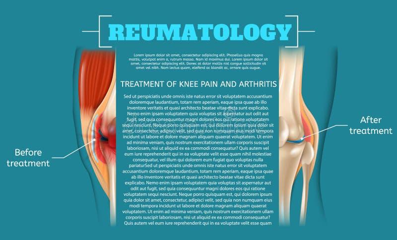 膝盖痛苦和关节炎的例证治疗 库存例证