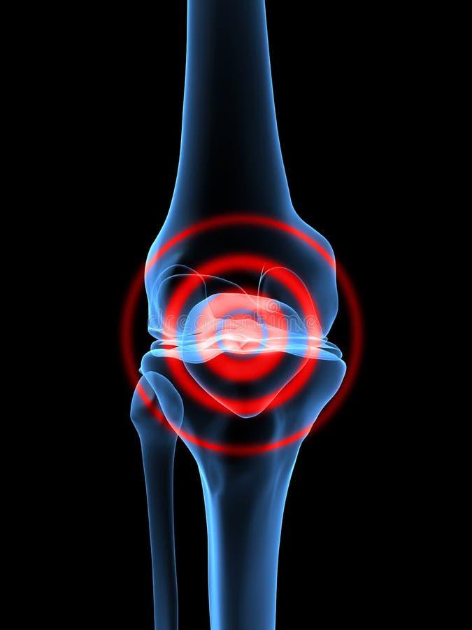 膝盖痛苦 库存例证