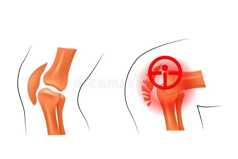膝盖,脱臼,破裂 外伤学和整形术 皇族释放例证