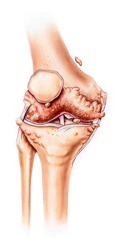 膝盖-先进的骨关节炎,正面图 免版税图库摄影