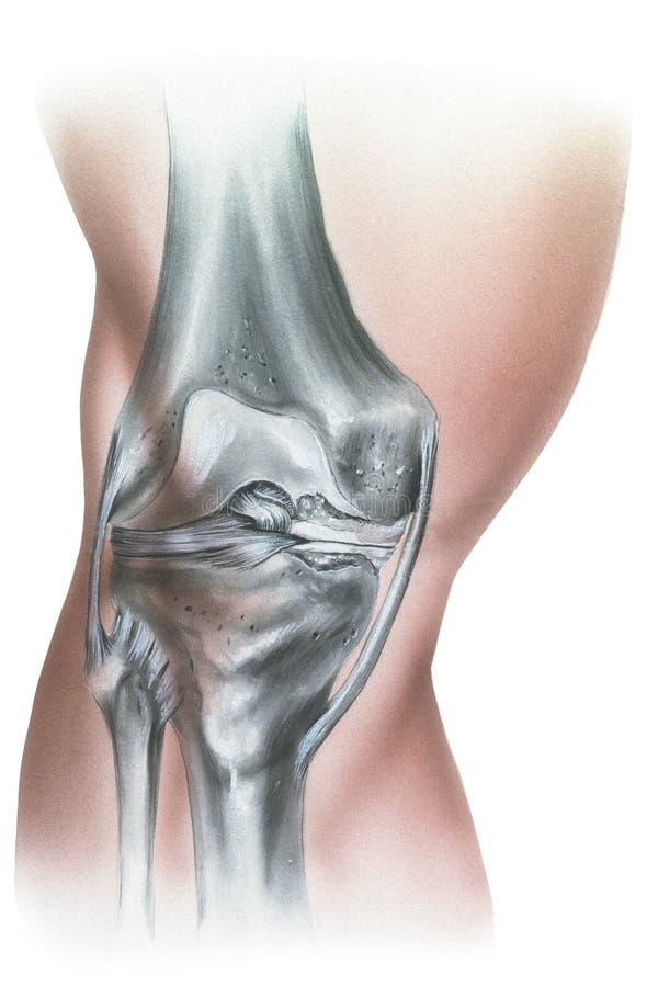 膝盖-半月板损伤和肥大 库存例证