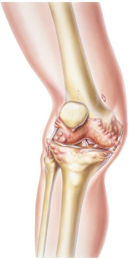 膝盖-风湿性关节炎 免版税图库摄影