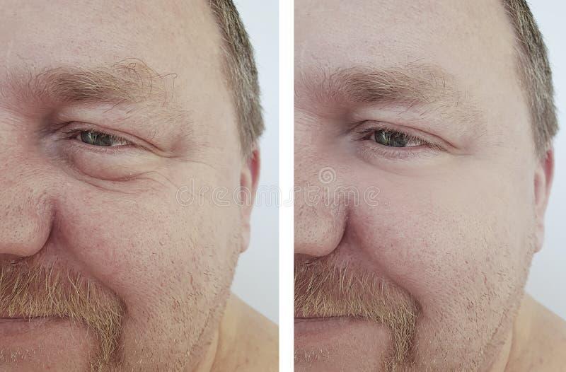 膨胀袋子的人眼睛在健康做法以后以前起皱纹 免版税库存照片
