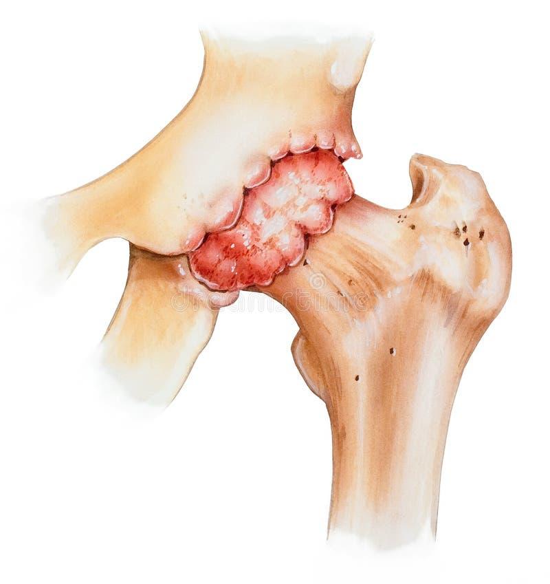 臀部-骨关节炎 库存照片