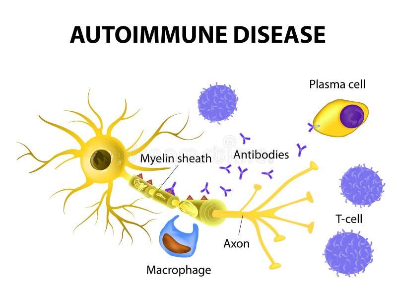自体免疫病 神经细胞的损伤机制在multipl的 皇族释放例证