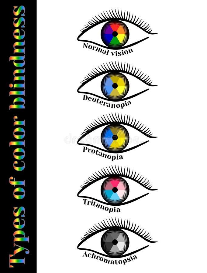 色盲的类型 皇族释放例证