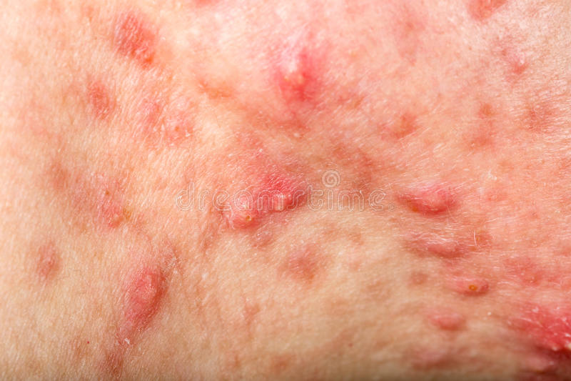 节状囊状粉刺皮肤 免版税库存照片