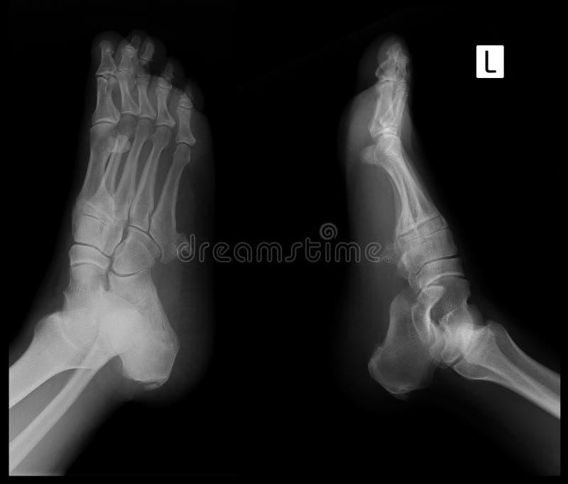 英尺的X-射线 第5根中骨骨头的外生骨疣 标记 库存照片