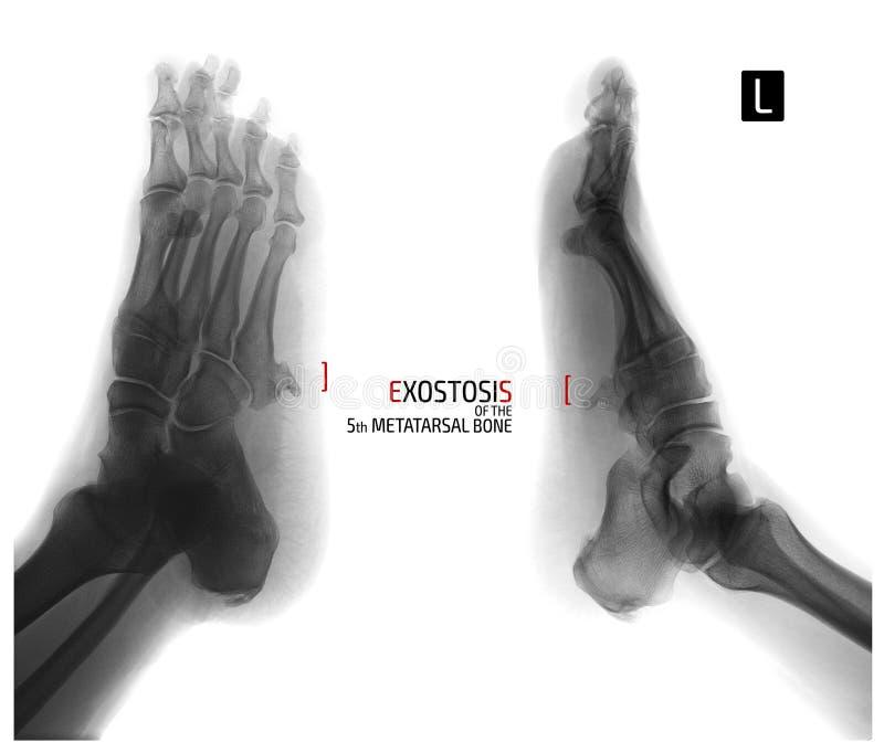英尺的X-射线 第5根中骨骨头的外生骨疣 负 标记 库存图片