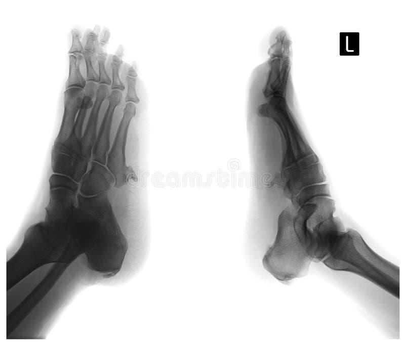 英尺的X-射线 第5根中骨骨头的外生骨疣 负 免版税库存照片