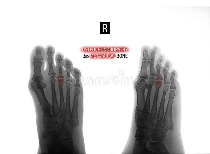 英尺的X-射线 3th中骨骨头的Osteochondropathy 负 标记 免版税库存图片