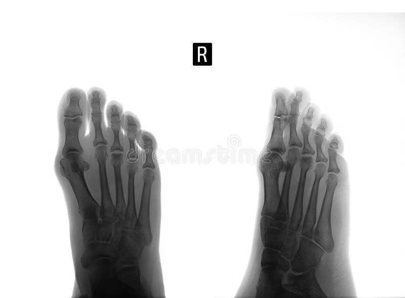 英尺的X-射线 3th中骨骨头的Osteochondropathy 负 标记 免版税图库摄影