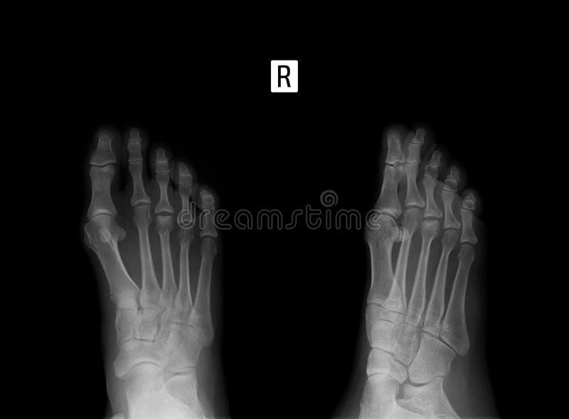 英尺的X-射线 3th中骨骨头的Osteochondropathy 免版税图库摄影