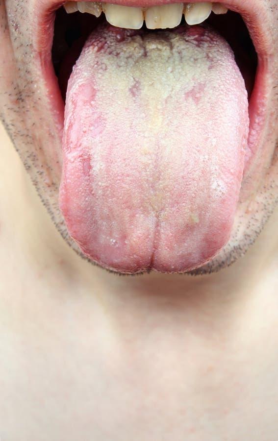 细菌感染疾病舌头 免版税图库摄影