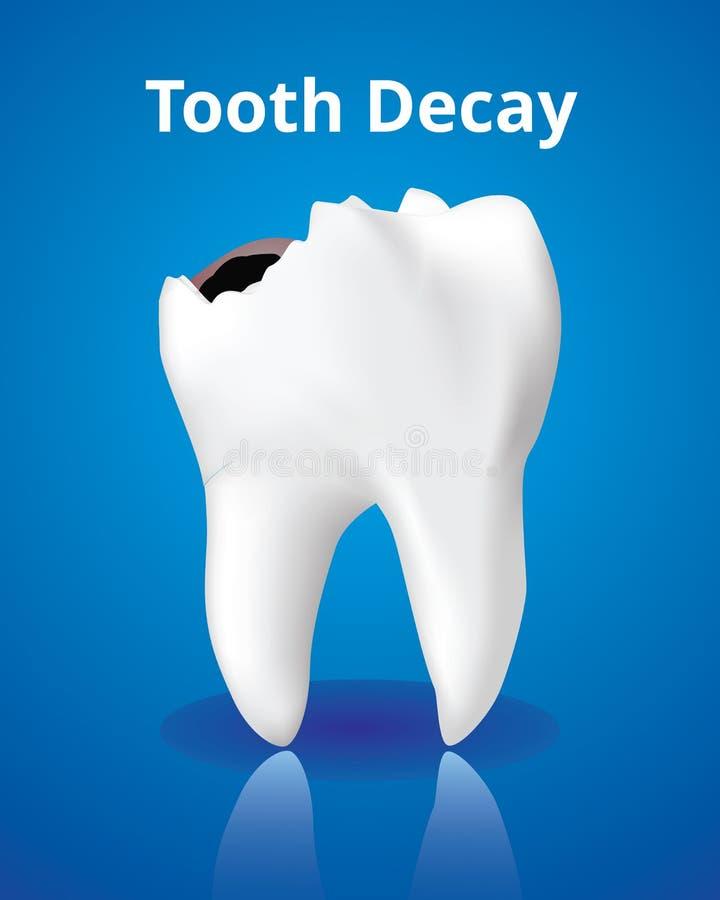 蛀牙,牙齿保护概念,现实设计例证传染媒介 库存例证