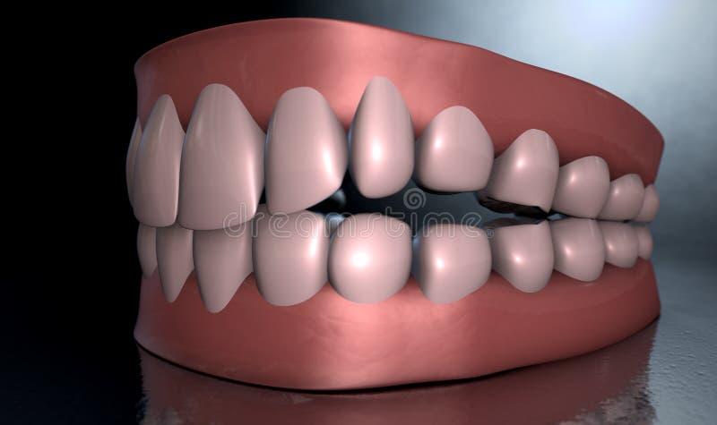 蠕动的牙 库存照片