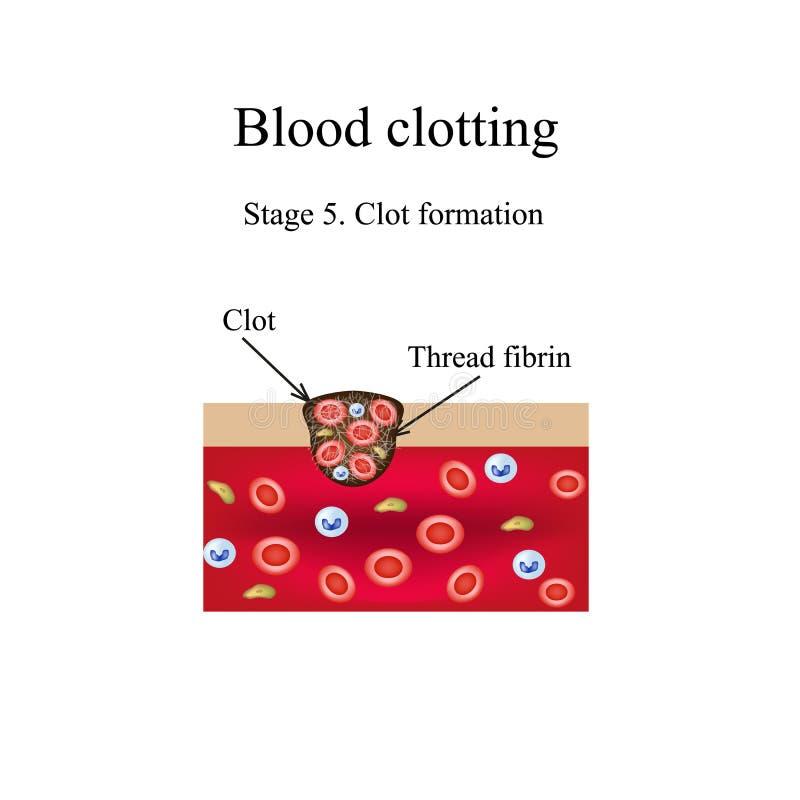 血凝结 5阶段 Infographics 也corel凹道例证向量 向量例证