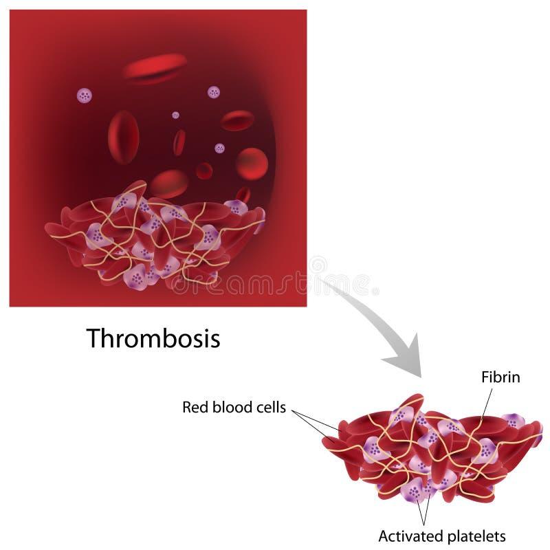 血栓形成 向量例证