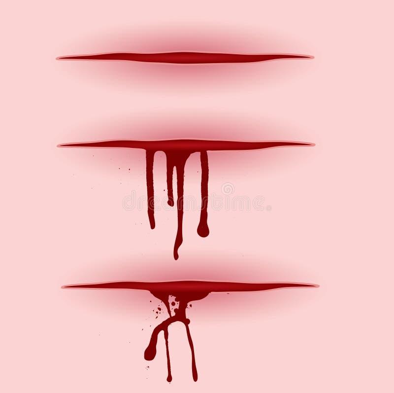 血液剪切 皇族释放例证