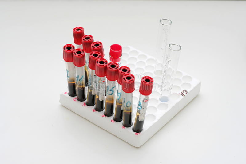 血液容器试管真空 免版税库存图片