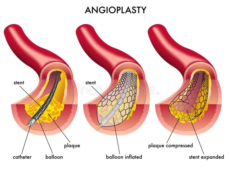 血管成形术 皇族释放例证