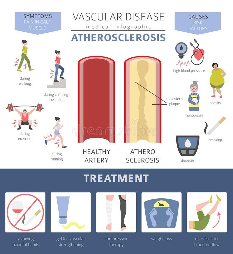 血管病 动脉粥样硬化症状,治疗象集合 库存例证