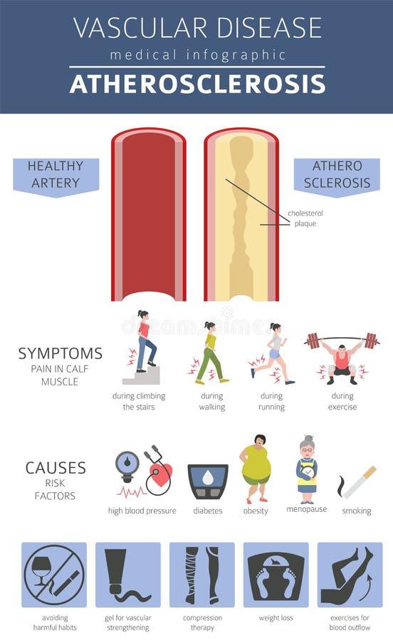 血管病 动脉粥样硬化症状,治疗象集合 向量例证