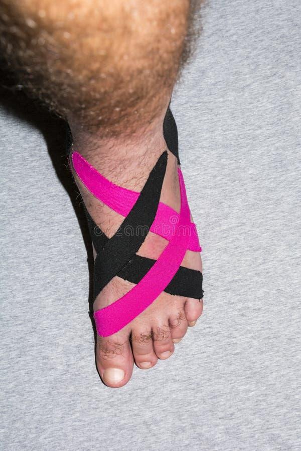 补丁的应用在害病的脚的修复的 免版税图库摄影