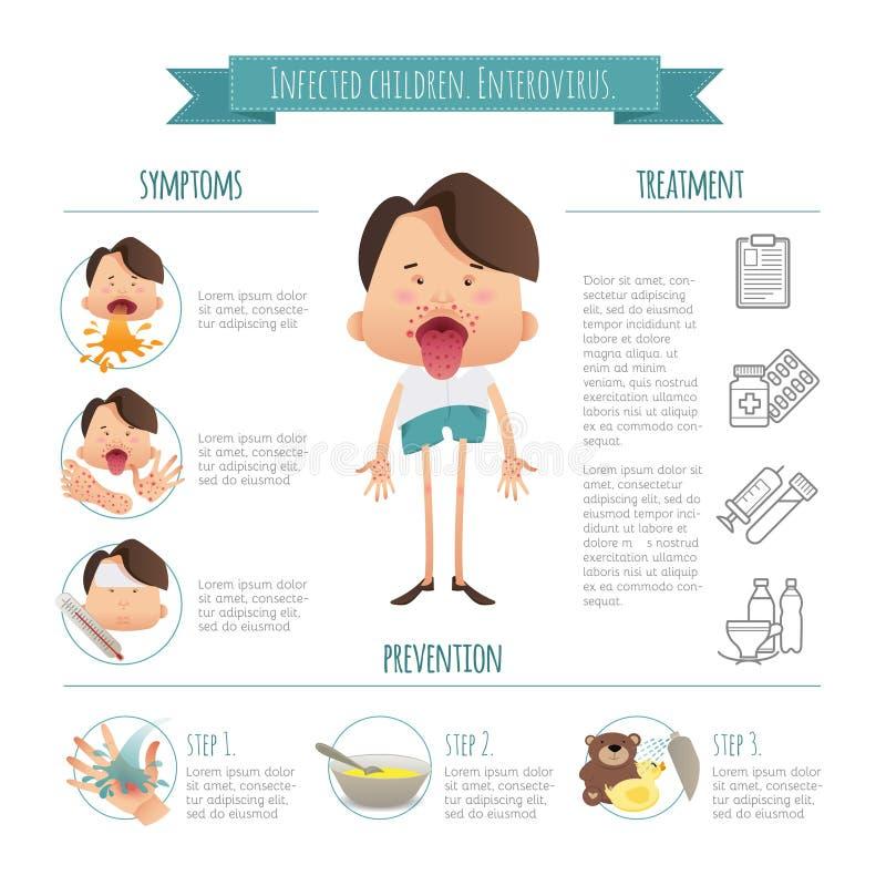 被传染的孩子 肠道病毒 手脚嘴疾病Infographics 症状、预防和治疗 动画片海报 向量例证