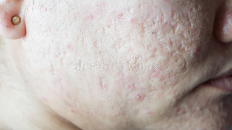 被传染的皮脂腺发生在皮肤的 免版税图库摄影