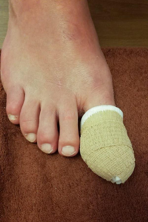 被包裹和被保护的巨大脚趾受伤 免版税库存照片