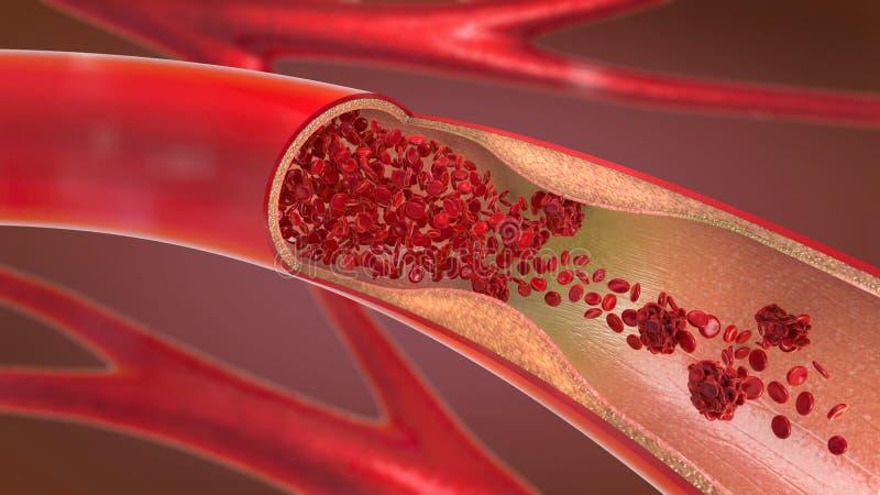 被压缩的和变窄的动脉和血液不可能适当地流动叫动脉硬化症 向量例证