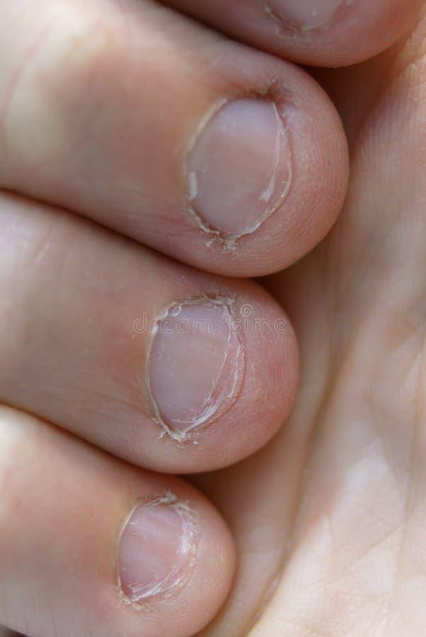 被咬住的指甲盖 免版税库存照片
