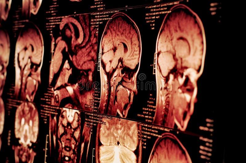 被弄脏的背景 磁反应的想象 概念身体检查 库存照片