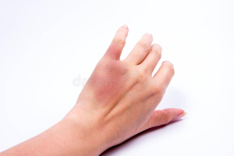 被挫伤的手 免版税库存图片