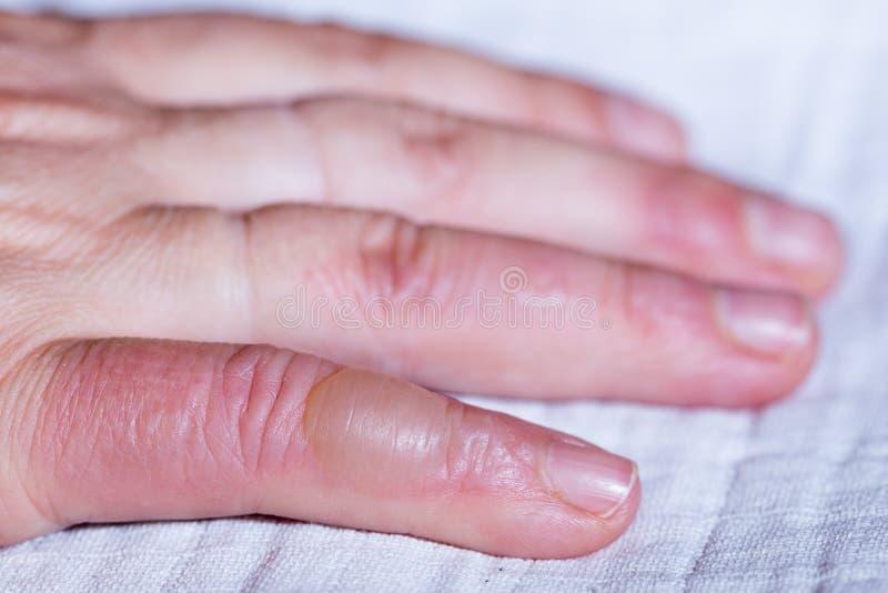 被烫伤的手 在您的手指的水泡 库存图片