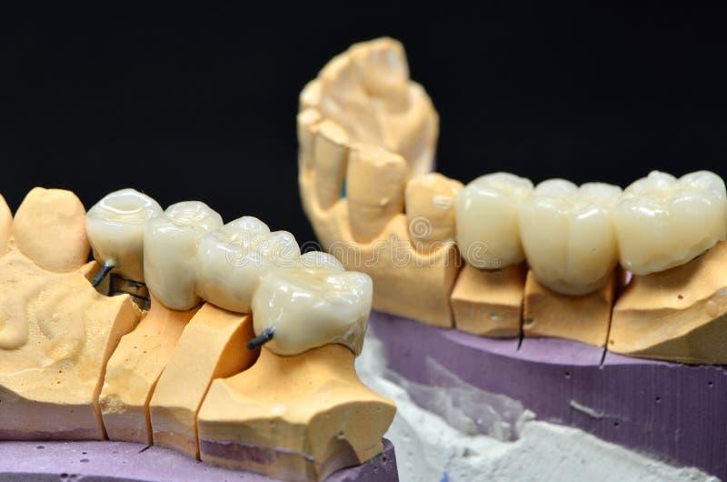 被种入的牙模型 免版税库存图片