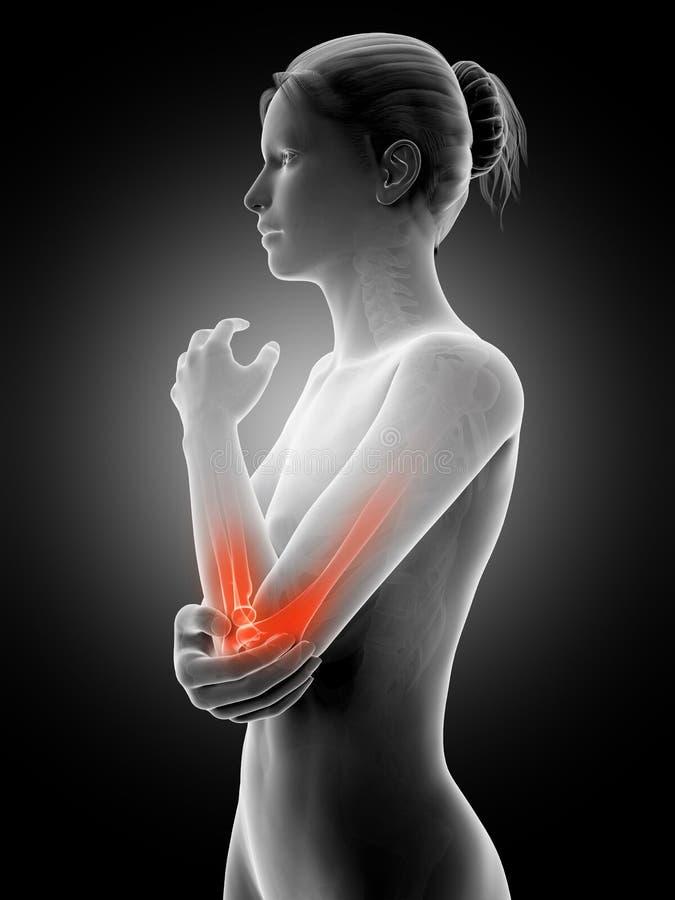 被突出的肘关节 库存例证