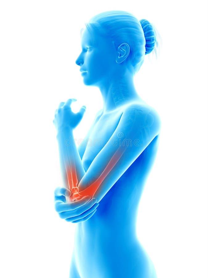 被突出的肘关节 向量例证